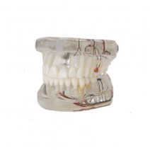 Modelo Dental Transparente de Implante con Nervio