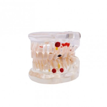 Modelo Dental Transparente Caries 32 Dientes